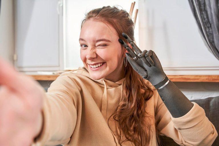 Esper Bionics